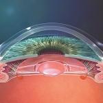 L'implant accommodatif crystalens se déplace vers l'avant pour fournir une image nette des objets situés en vision de près.