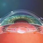 Une translation modérée vers l'avant de l'optique de l'implant accommodatif améliore la qualité de vision en distance intermédiaire.