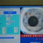 Le laser femtoseconde commence sa progression faite de lignes d'impacts qui vont dessiner un volet cornéen de diamètre déterminé