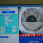 Le volet cornéen est en cours de réalisation au laser femtoseconde.