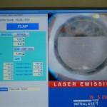 Le laser femtoseconde a déjà fait les deux tiers de la découpe cornéenne, dessinant le capot cornéen qui sera ensuite soulevé pour donner accès au laser excimer