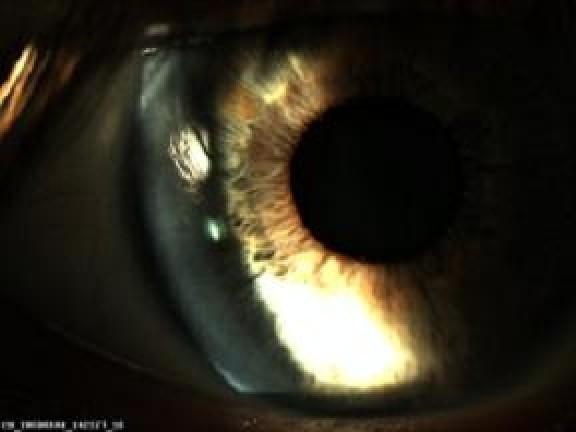 Cornée parfaitement claire au lendemain d une chirurgie laser lasik e0020bc8d712