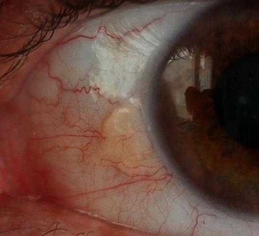 Le sérum pour la correction de la pigmentation de la peau