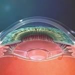 En vision de loin, l'optique de l'implant accommodatif crystalens reste en position postérieure dans le sac capsulaire