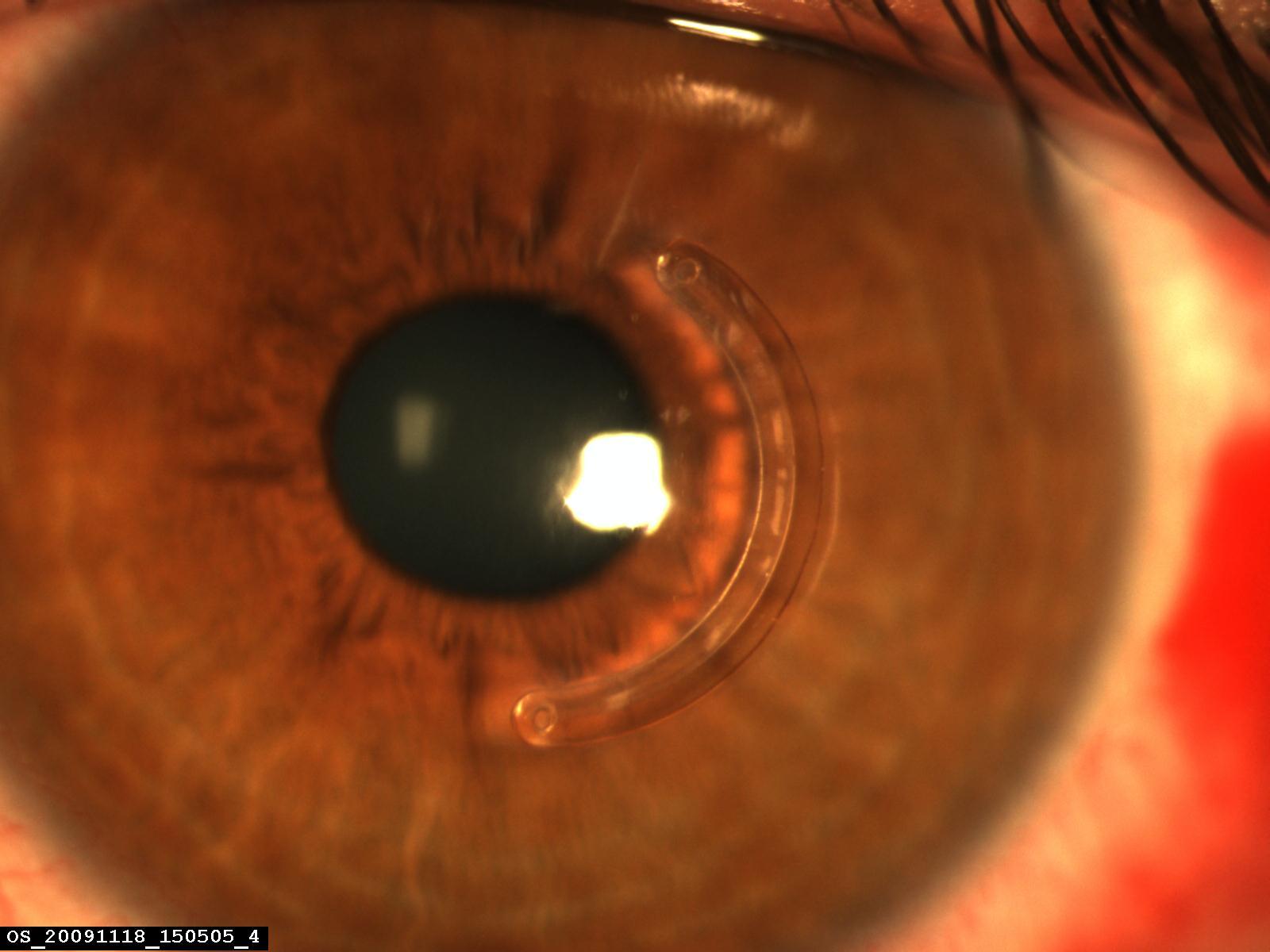 Hémi-anneau cornéen parfaitement centré sur la pupille et cornée déjà claire à J1. Aspect postopératoire précoce