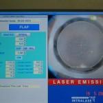 Le passage du laser femtoseconde est terminé, le volet cornéen est virtuellement découpé.