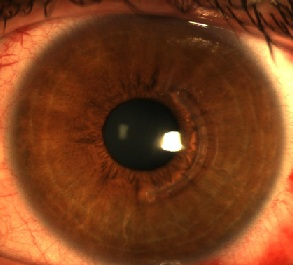 Anneau semi-circulaire implanté dans l'épaisseur de la cornée